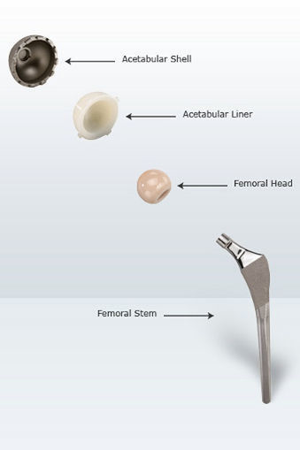 Hip Replacement Components Sciencelearn Hub